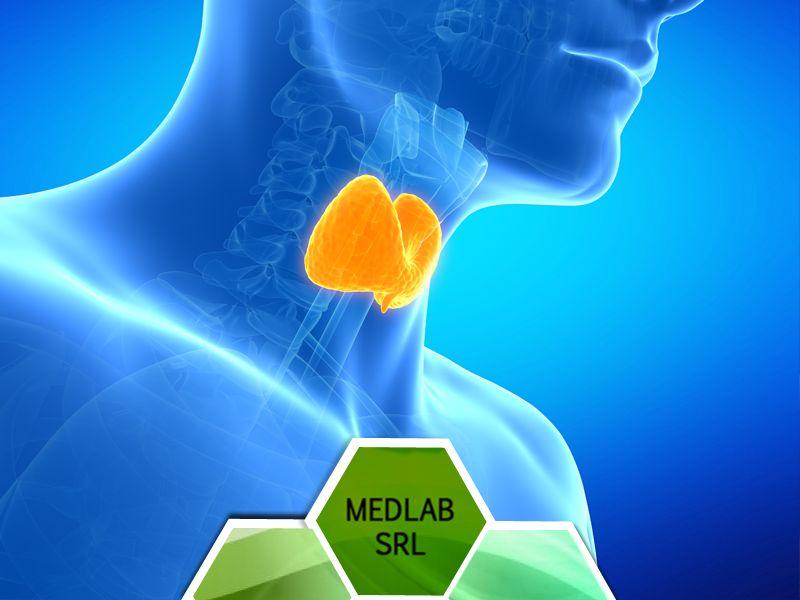 offerta check up tiroide - prenotazione analisi check up tiroideo vittoria scioglitti