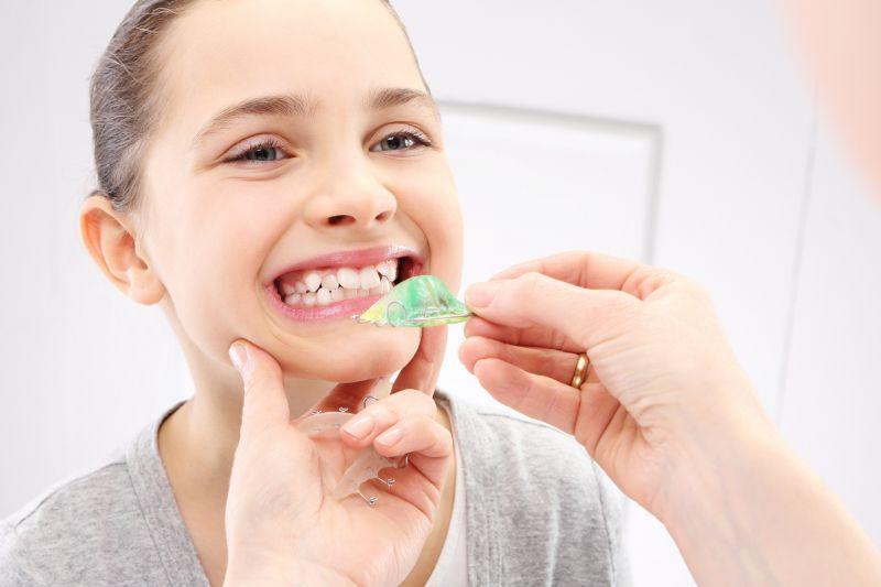 Offerta servizio ortodonzia estetica linguale - Promozione dentista ortodontista Reggio Emilia